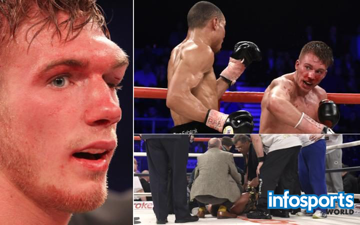 Nick Blackwell admitted in hospital with bleed on his brain