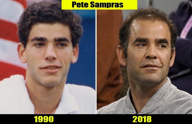 Pete Sampras (1990, 2018) Then and now Transformation | Before and After