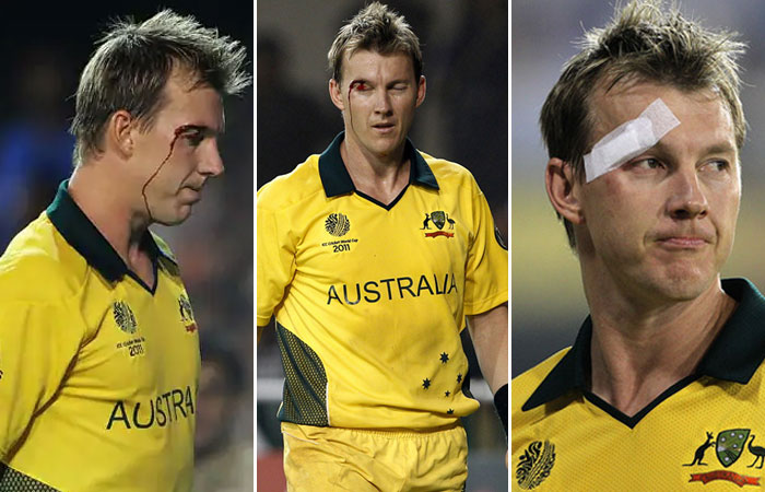Brett Lee injured in his eye while fielding in the India vs Australia, 2nd quarter-final, World Cup 2011